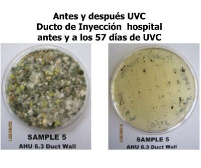 Antes y Después UVC - Ducto de Inyección Hospital